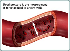 Image of artery walls